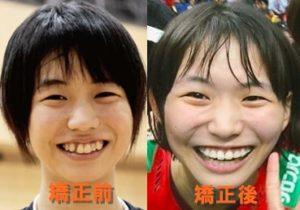 古賀紗理那の歯列矯正比較画像