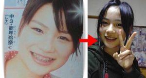 能年玲奈の顔変化
