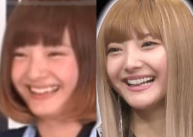 安斉カレンのの現在と昔の顔比較画像